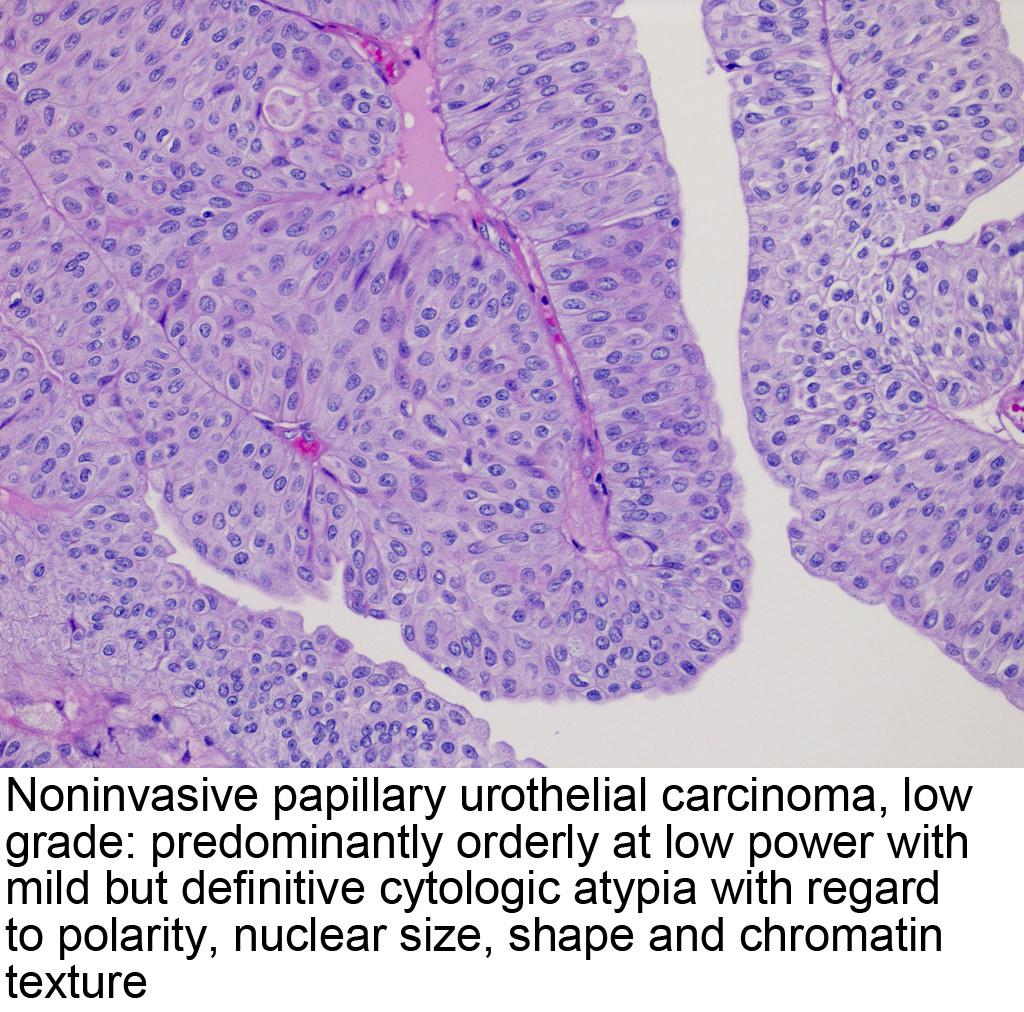papillary urothelial tumor)