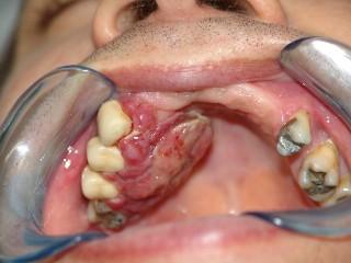 cancer bucal cuba