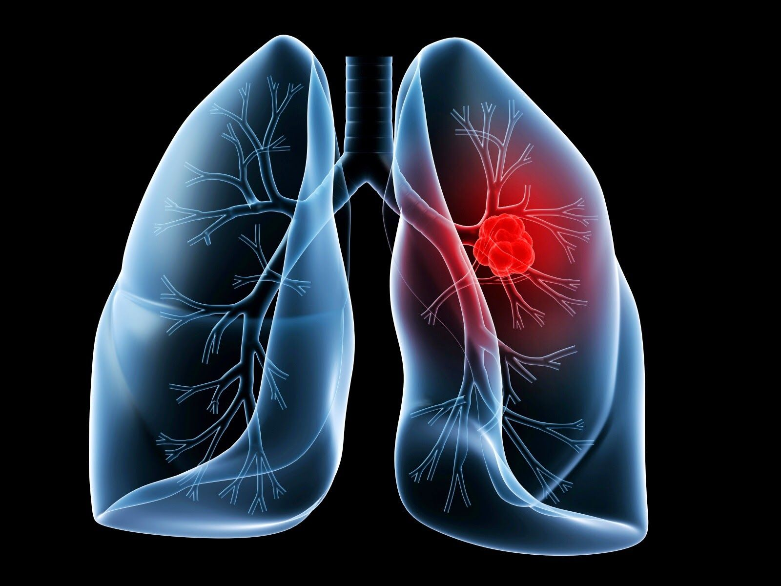 cancer pulmonar q es