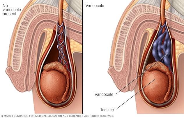 sessile papilloma eyelid cancer prostate feminin