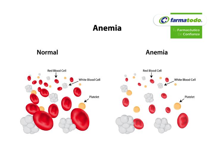 anemia q es cancer de pancreas no brasil