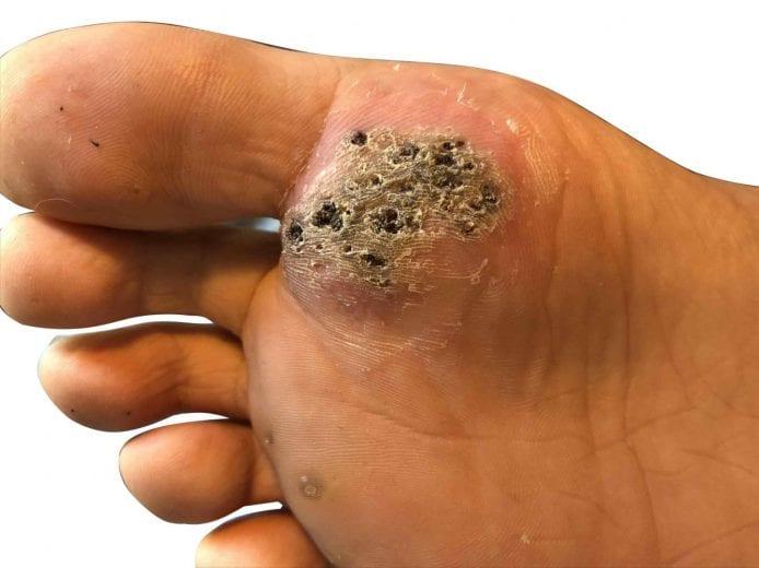 wart on foot thumb)