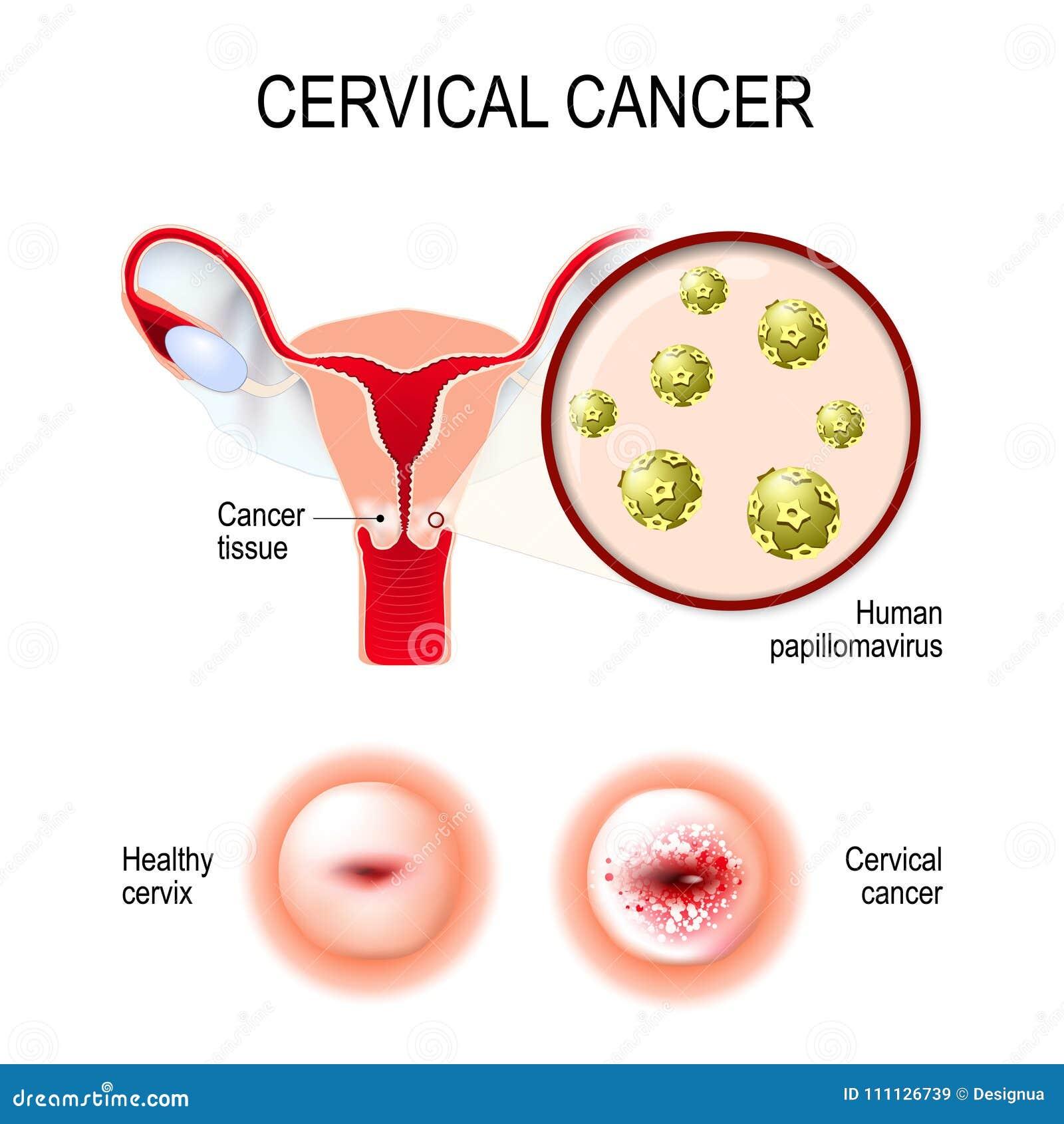 hpv in utero)