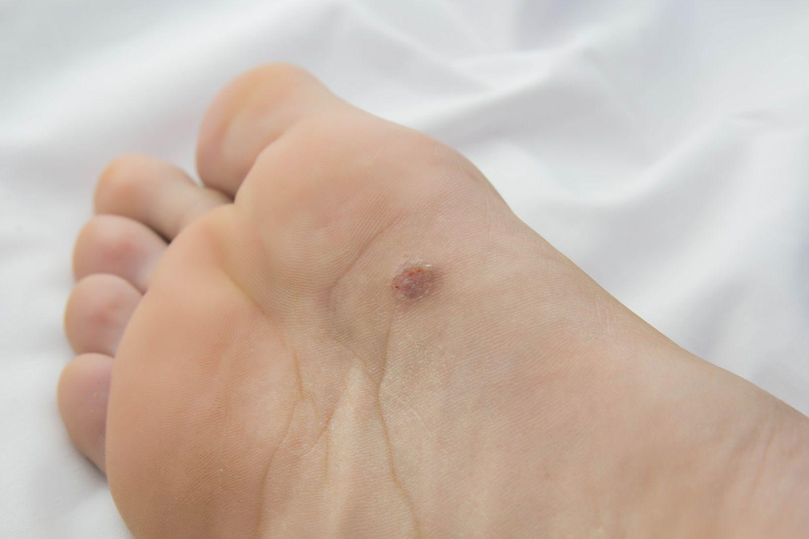 que es un papiloma en el pie)