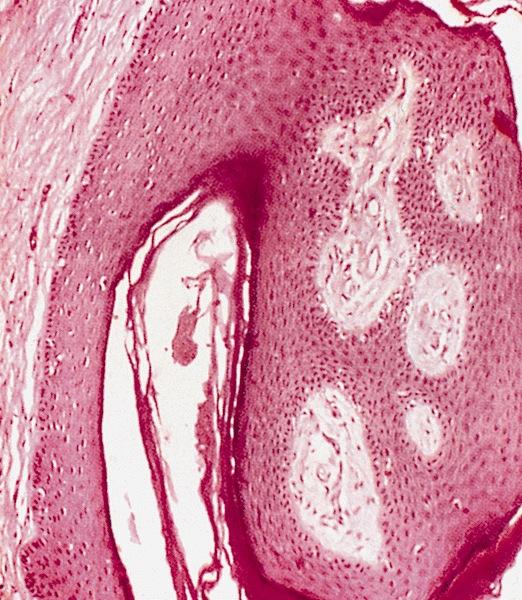 hirsutoid papillomas histology abdominal cancer pain relief