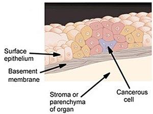 cancer de colon ppt