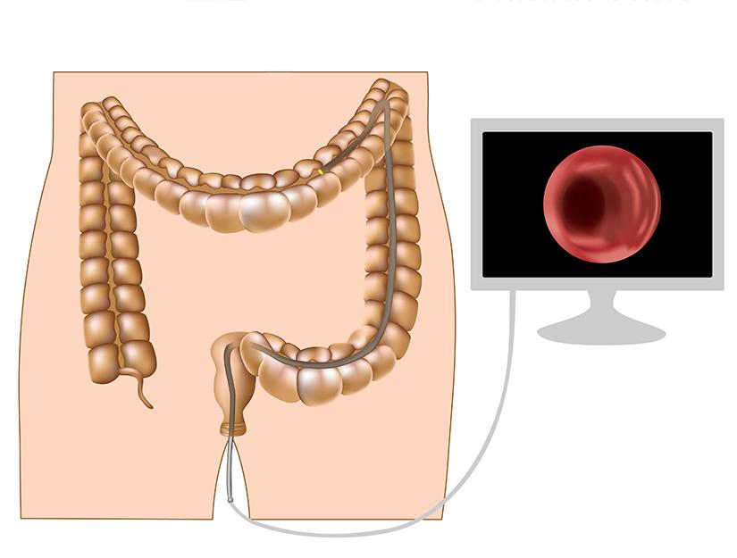 cancerul de colon este ereditar)