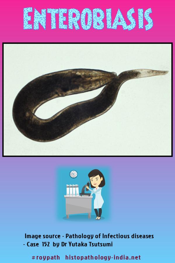 enterobius vermicularis urina
