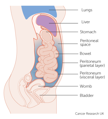 peritoneal cancer detection)