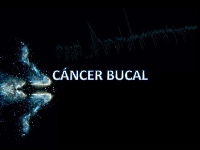 cancer bucal en cuba)
