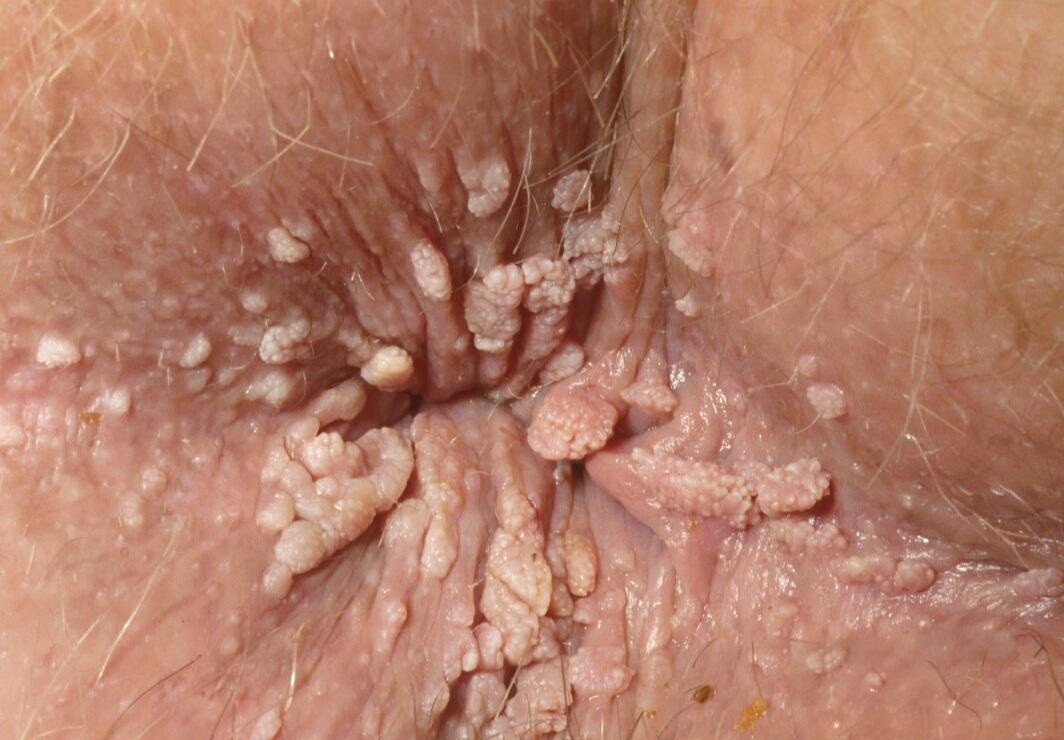 hpv removal los angeles