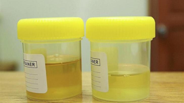 cancer urina portocalie)