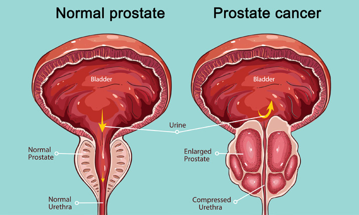 is there a link between hpv and prostate cancer)
