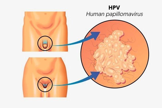 papillomavirus how to treat)