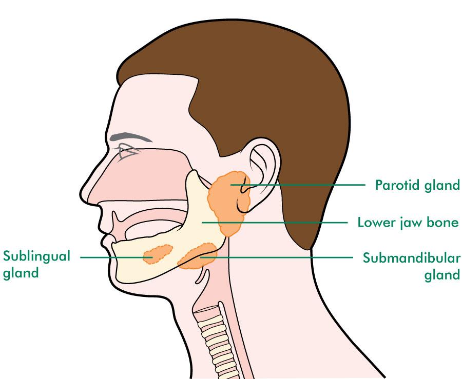 aggressive cancer of the salivary gland)