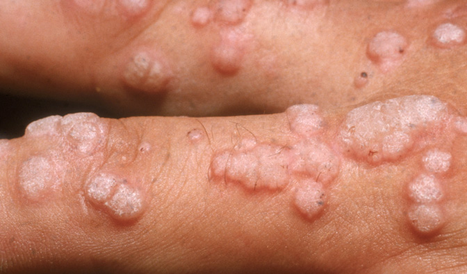 symptoms of papilloma virus)