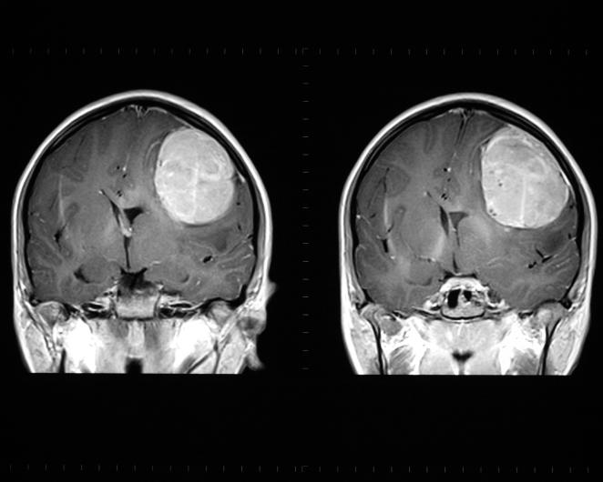metastatic cancer in brain