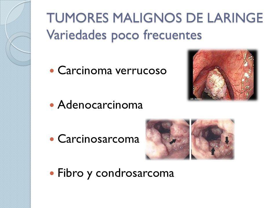 cancer verrucoso laringe)