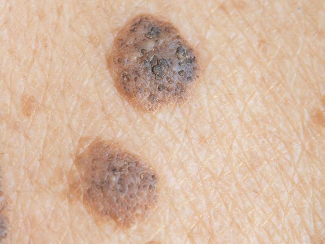 32 Best ALLERGIES AND EYE ILLNESSES images | Stye treatment, Eye stye remedies, Stye remedy