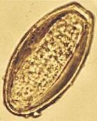 egg of oxyuris equi