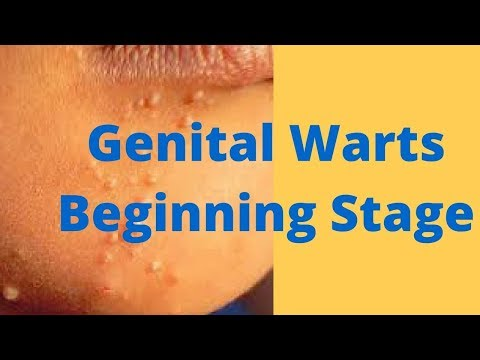 hpv warts stages)