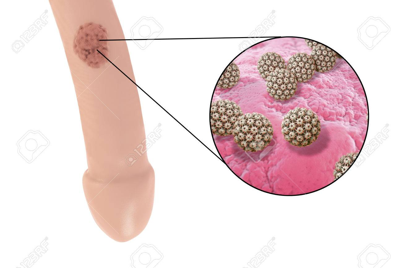 genital human papilloma virus)