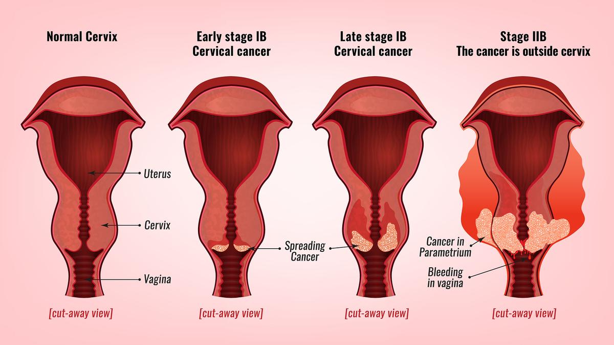 que es el papiloma humano en mujeres y como se contagia)