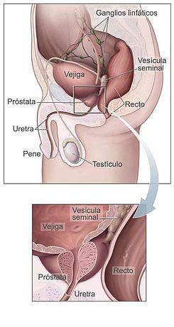 cancer de prostata definicion)