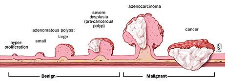 cancer benign polyp