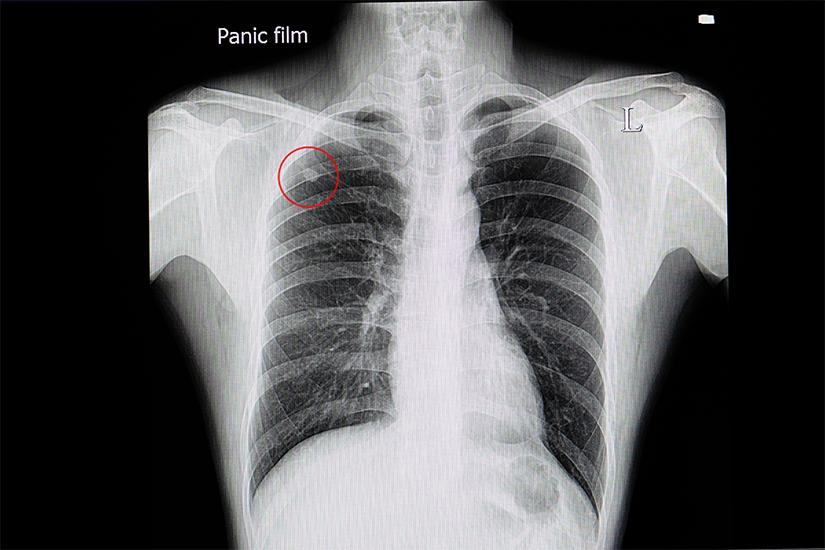 cancer bronhopulmonar manifestari)