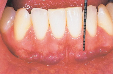 cancer bucal gingivitis