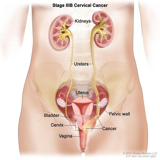 cancer col uterin engleza