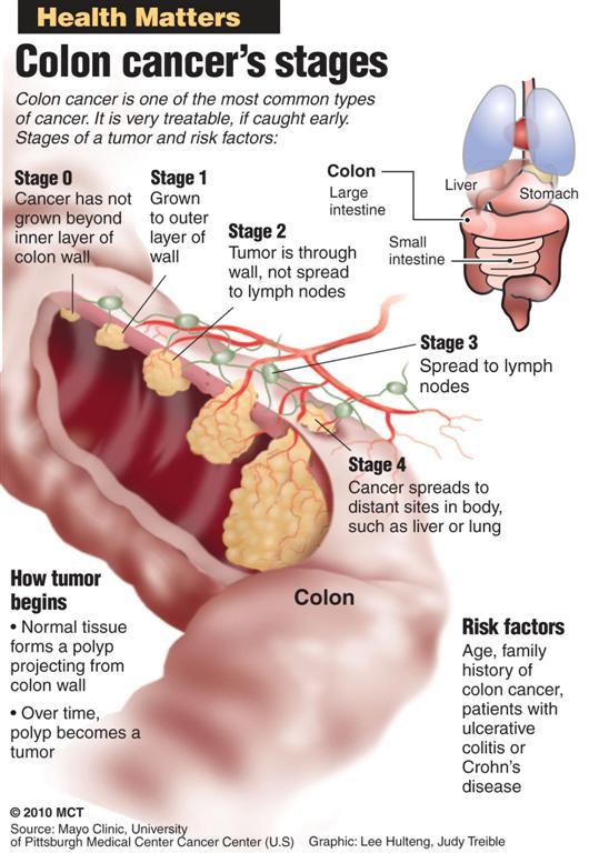 cancer colon vitesse sedimentation