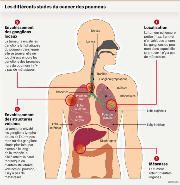 cancer colorectal metastases poumon