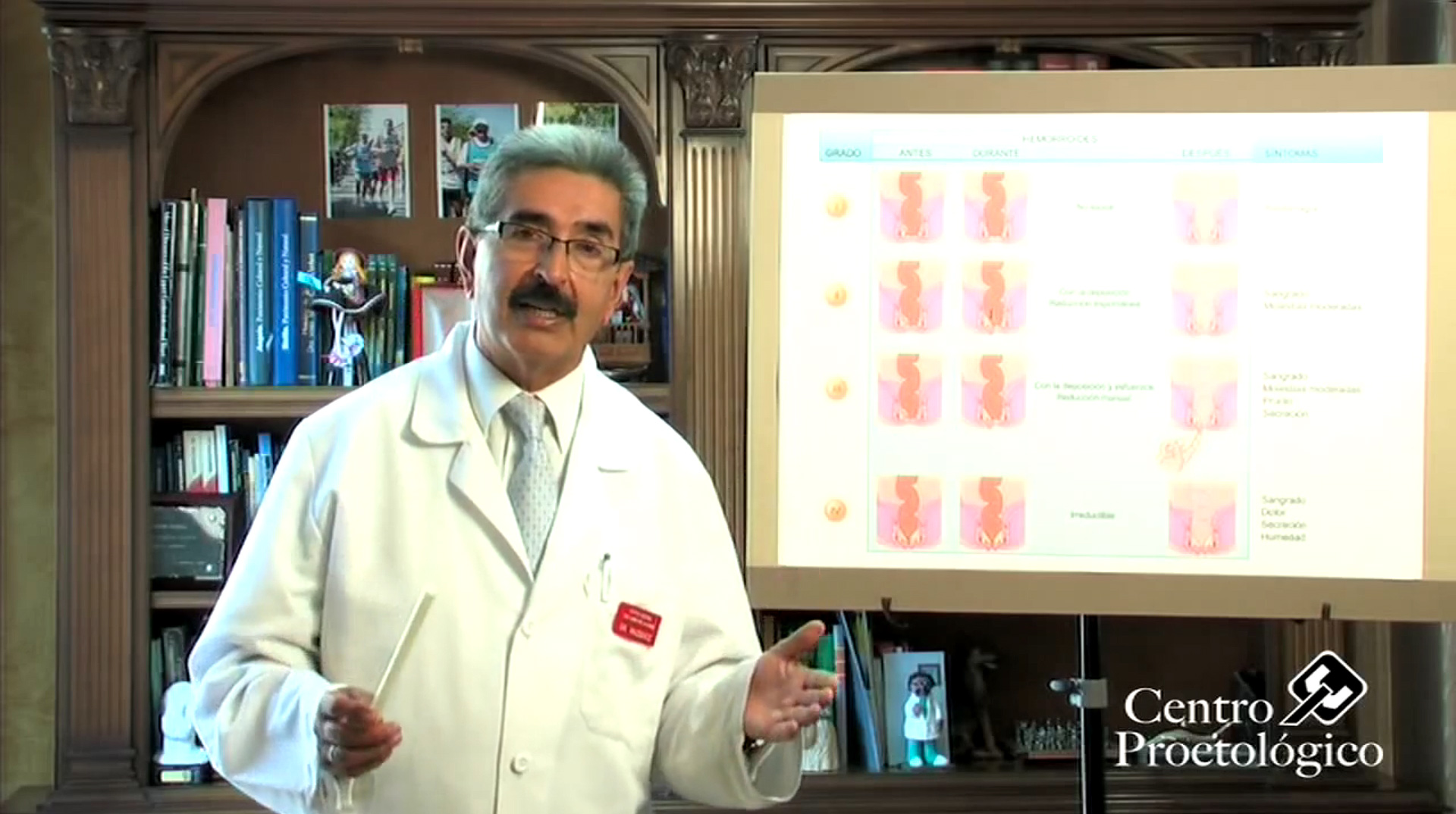 cancer de colon hemorroides)