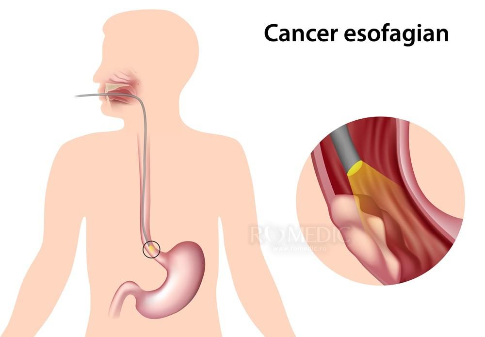 cancer de esofag primele simptome