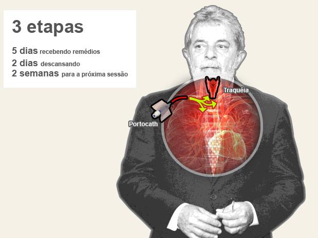 cancer de laringe tem cura)