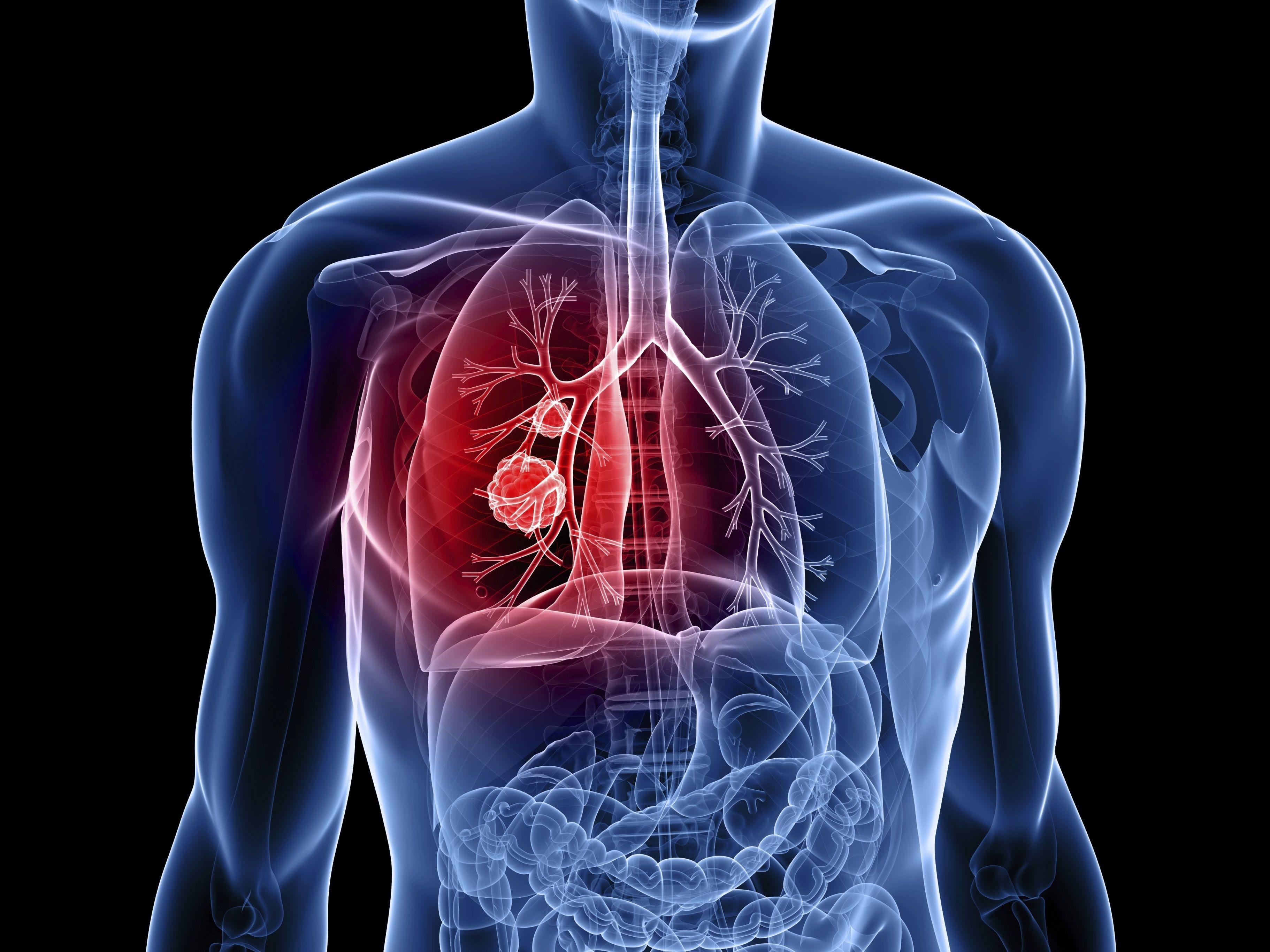 cancer de limfa
