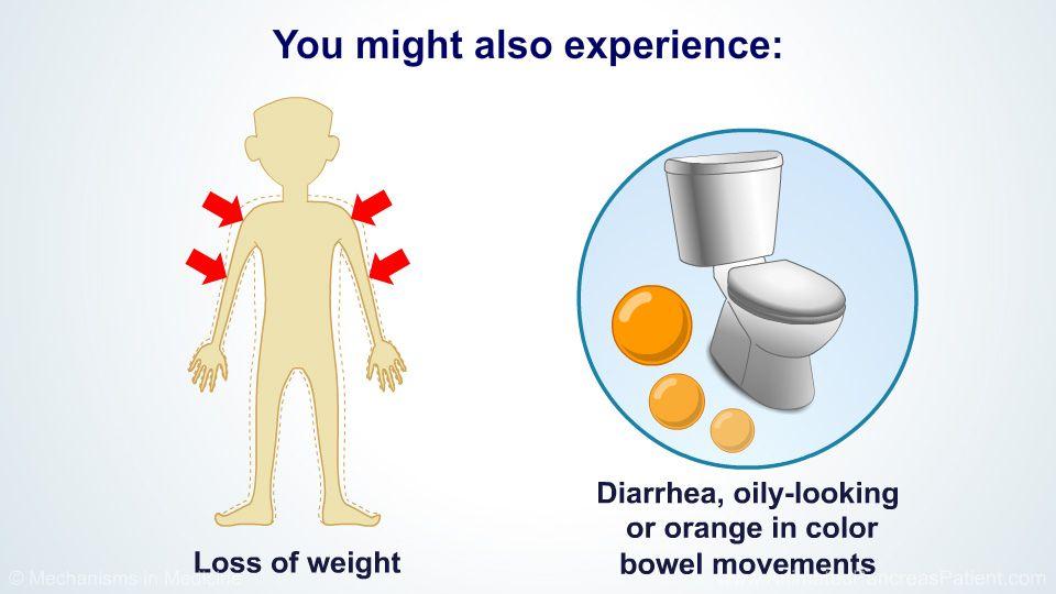 cancer de pancreas diarrhea