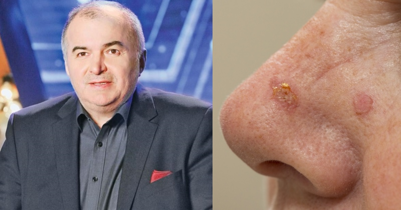 cancer de piele pe nas