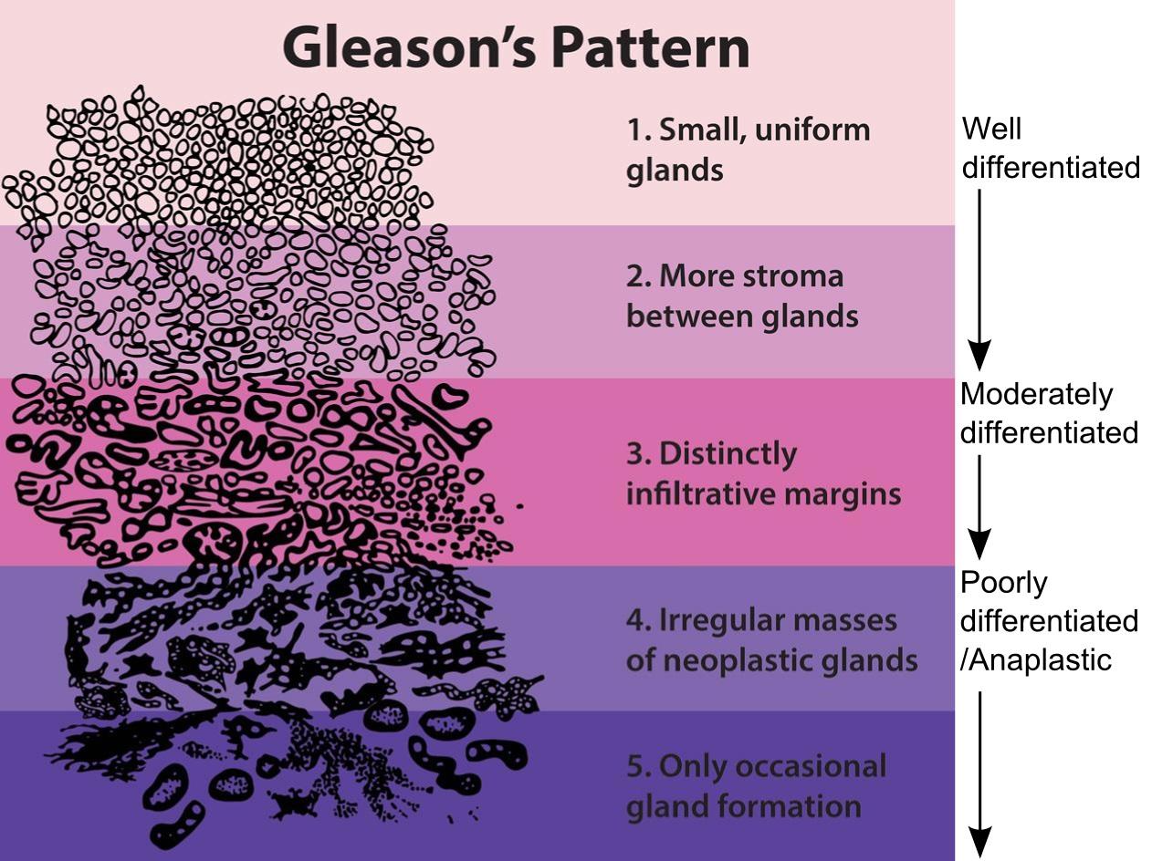 cancer de prostata gleason 6 3+3