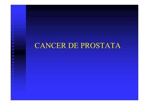 papiloma humano tratamiento farmacologico cancer and abdominal pain