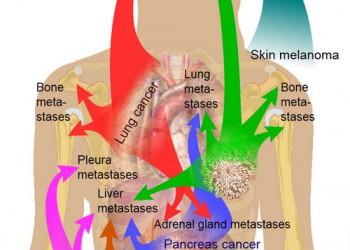 cancer in metastaza simptome