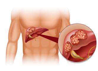cancer la ficat cu metastaze la pancreas