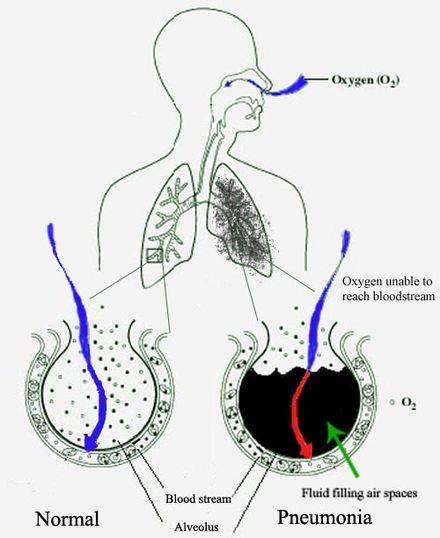 cancer la plamani cauze si simptome