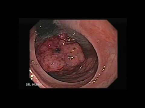 cancer of rectal polyps)