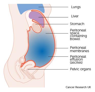 cancer pain abdominal wall)
