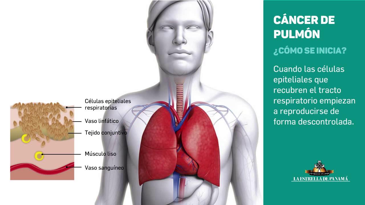 cancer pulmonar q es)