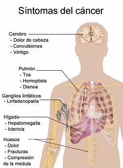 cancer pulmonar sintomas y signos)