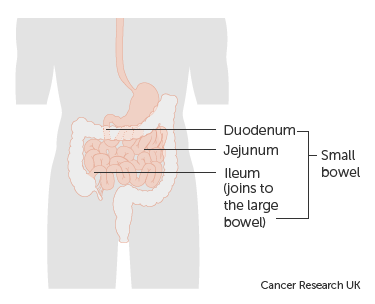 cancer research neuroendocrine tumours